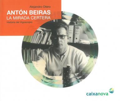 Antón Beiras: La mirada certera: Historia del Vigoscopio
